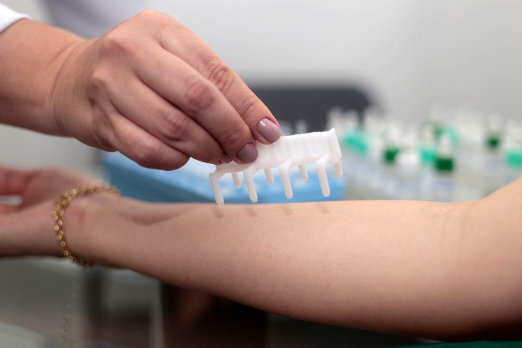 Prick test que causa menos dor do que outros testes alérgicos